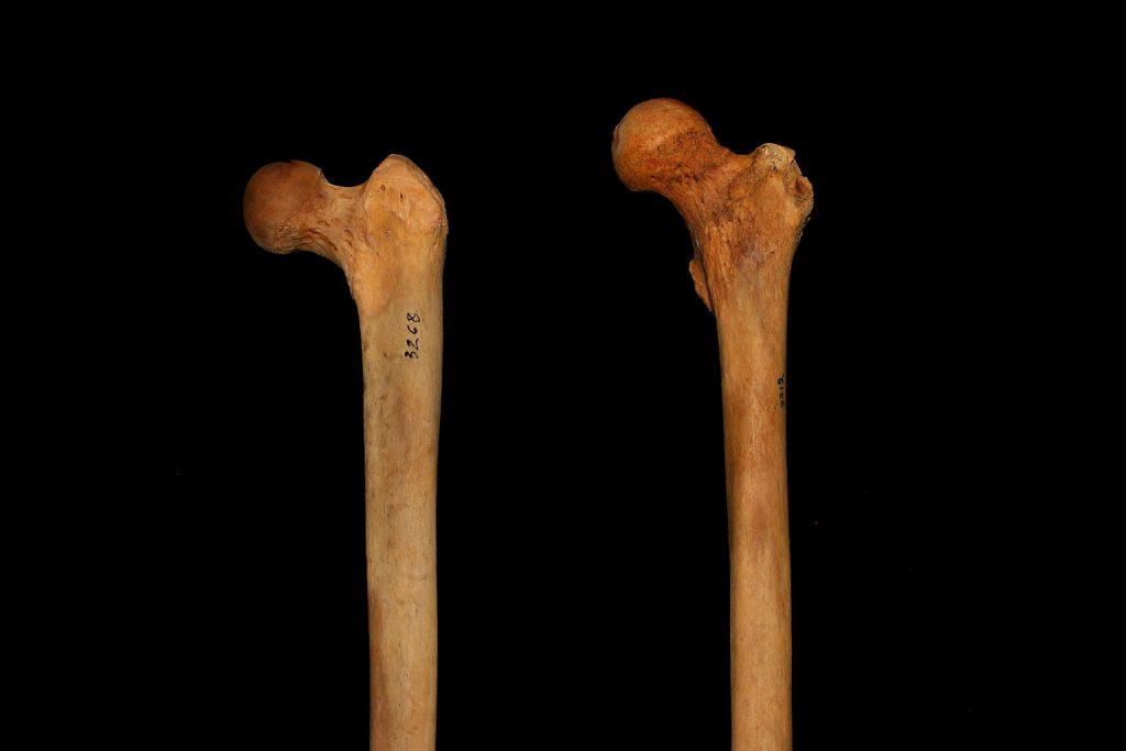 Abb. 17: Zwei unterschiedliche Oberschenkelknochen, Beispiel 1