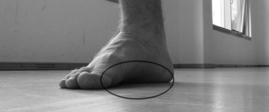 Abb. 6: Mangelnder Kontakt der Fußfläche zum Boden