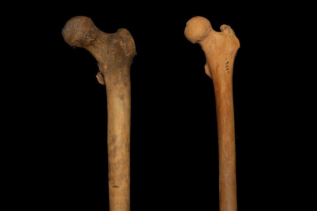 Abb. 18: Zwei unterschiedliche Oberschenkelknochen, Beispiel 2.